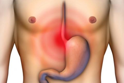 soluciones-sintomas-hernia-hiato