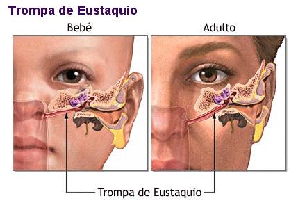Debido a la anatomía de la trompa de Eustaquio es muy habitual que las secrecciones se desplacen hacia el oído medio.